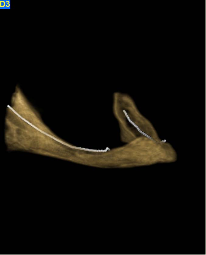 mandibular reconstructions